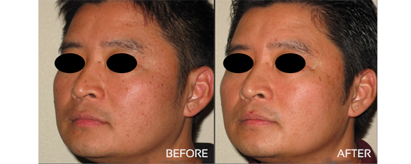 Facial Rejuvinations
