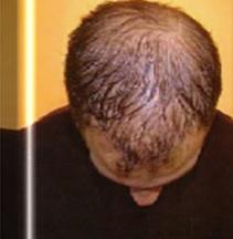 Before Hair Restoration